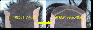 カツラの修理 画像