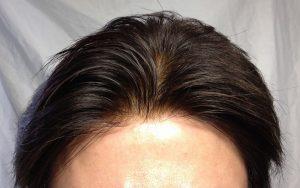 自然なカツラ 自然な増毛 ヘアスタイル 画像