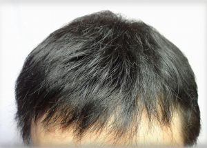 前髪を下ろしたヘアースタイル