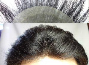 貼り付けタイプ 増毛 カツラ 自然な生え際 画像